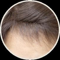 生え際のうぶ毛のアップ写真